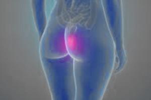Sexo anal con hemorroidas